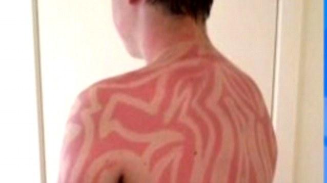 sunburn art la nouvelle tendance dangereuse du coup du soleil tatouage. Black Bedroom Furniture Sets. Home Design Ideas